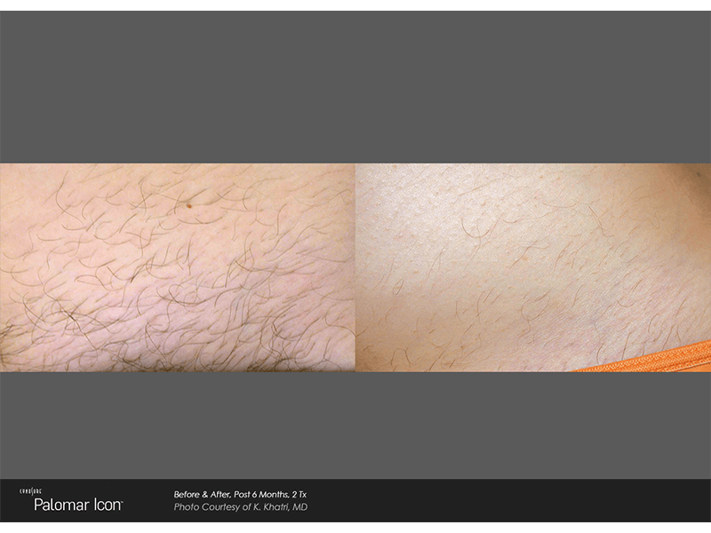laser-hair-removal-4